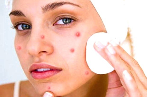 how to remove pimple marks  how to remove pimples from face