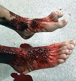 This teen dips his feet into the water but ends up getting a bloodied feet after the flesh-eating bugs fed on his feet!