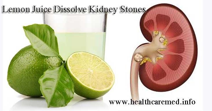 Health Care Medicine Lemon Juice Dissolve Kidney Stones