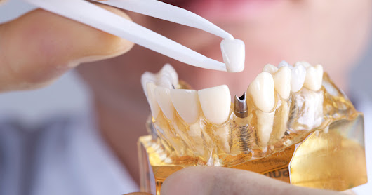 Implant Dentistry: Let Not Missing Tooth Degrade your Smile