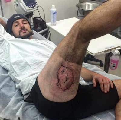 British mountain biker suffers horrific burns after his iPhone exploded in his shorts