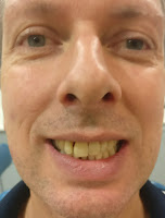 Milton Keynes dentists straight teeth without extractions, winner Ian smiling before treatment