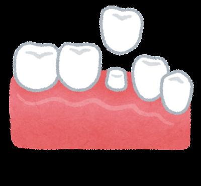 差し歯のイラスト(歯の治療)