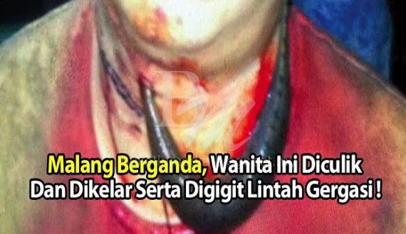 Malang Berganda, Wanita Ini Diculik Dan Dikelar Serta Digigit Lintah Gergasi !