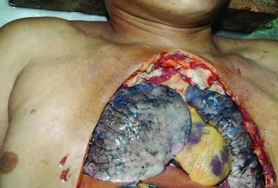 Gambar pesakit kanser paru-paru yang merokok