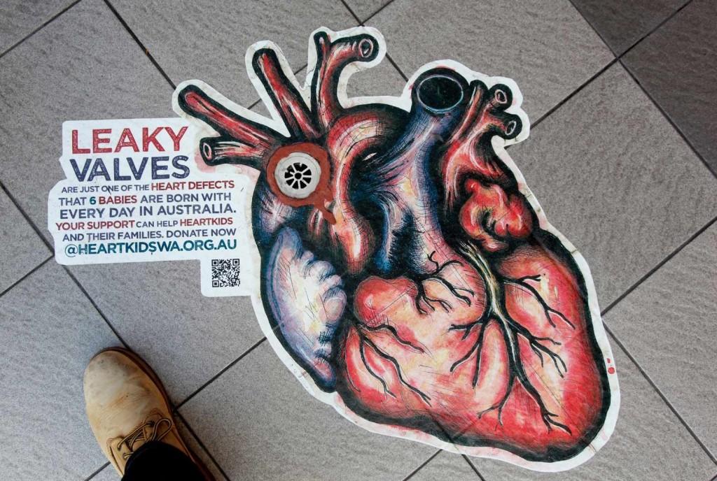 Jantung Bocor, bahaya dan Gejalanya