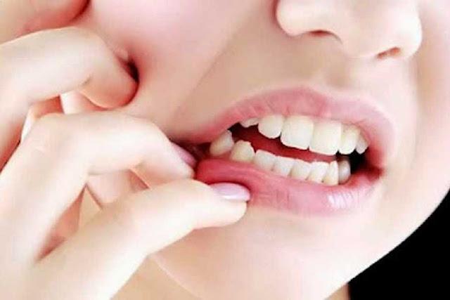 Obat Sakit Gigi Alami yang Patut Dicoba