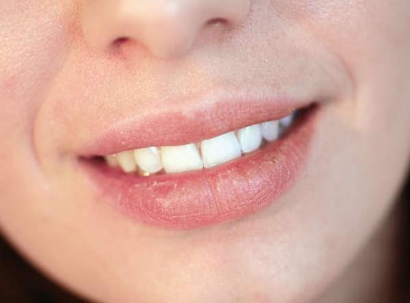 7 Penyebab Bibir Pecah-pecah