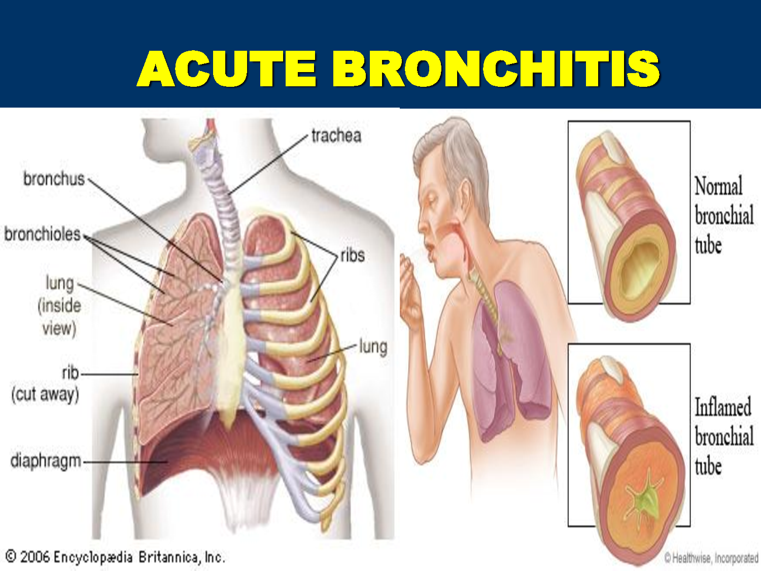 How To Cure Bronchitis Cough Naturally