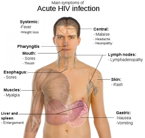 HIV / AIDS, Symptoms and Transmission Method | World Wide Web
