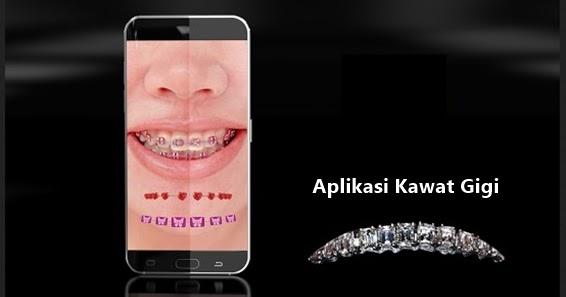 aplikasi edit gigi kelinci