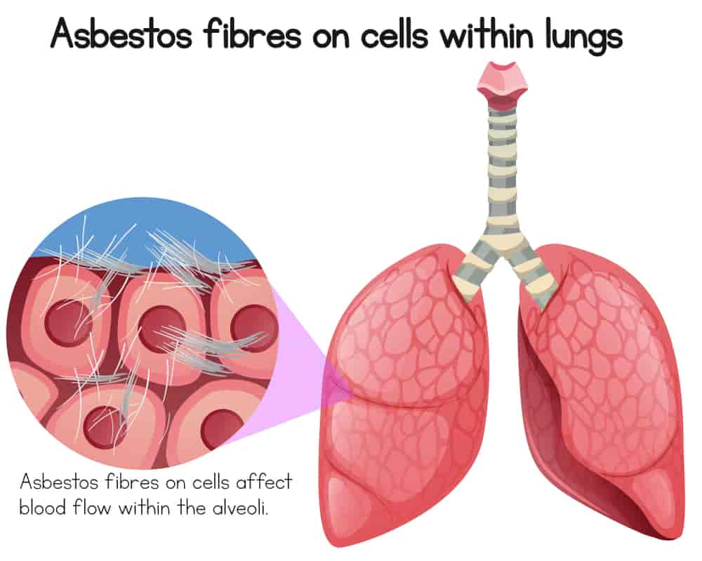 Mesothelioma Pictures and mesothelioma infographics