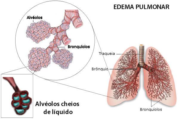 Resultado de imagem para edemas pulmonares