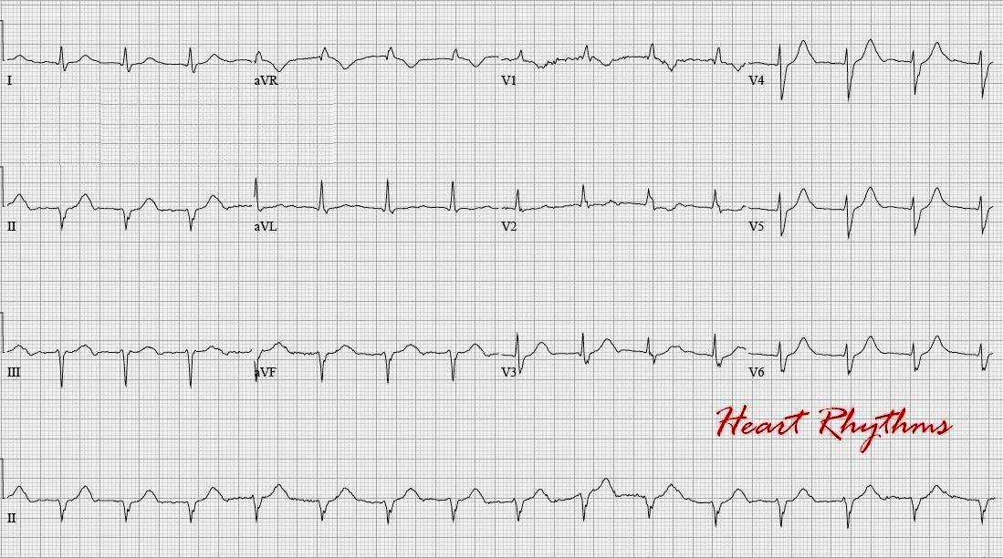 ECG Rhythms: Sinus rhythm with long PRI mimicking junctional
