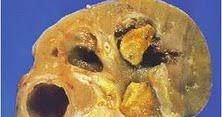 Cara Mengobati Batu Ginjal ~ Cara Menyembuhkan Penyakit