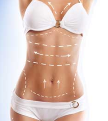 tummy tuck-breast-reduction-combined