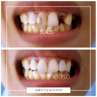 perbaikan dan pemasangan gigi sas ahli gigi pati jawa tengah