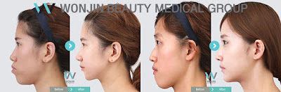 Protruded Mouth Correction with Korean Two Jaw Surgery