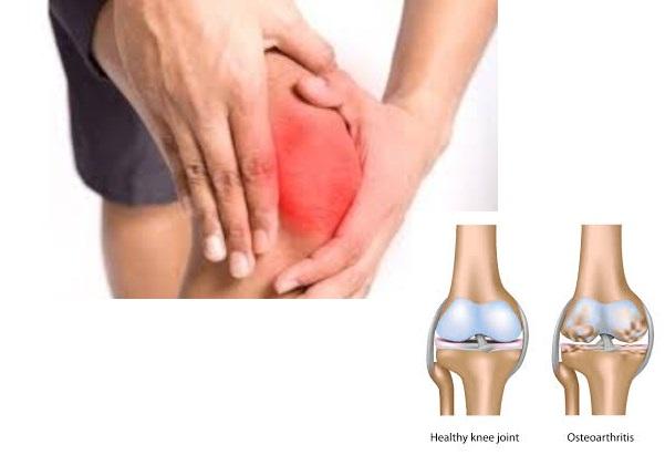 Obat Pengapuran Tulang, Cara Menyembuhkan Pengapuran Tulang Terbukti Ampuh Sampai Sembuh 100% Aman, Efektif Dan Cepat
