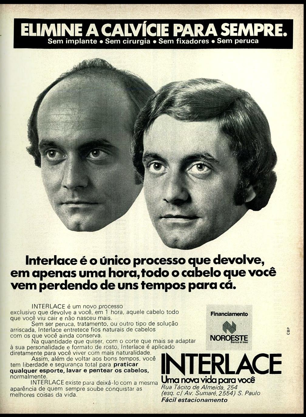 Propaganda antiga do Interlace nos anos 70 com promessa de retomada dos cabelos para os carecas