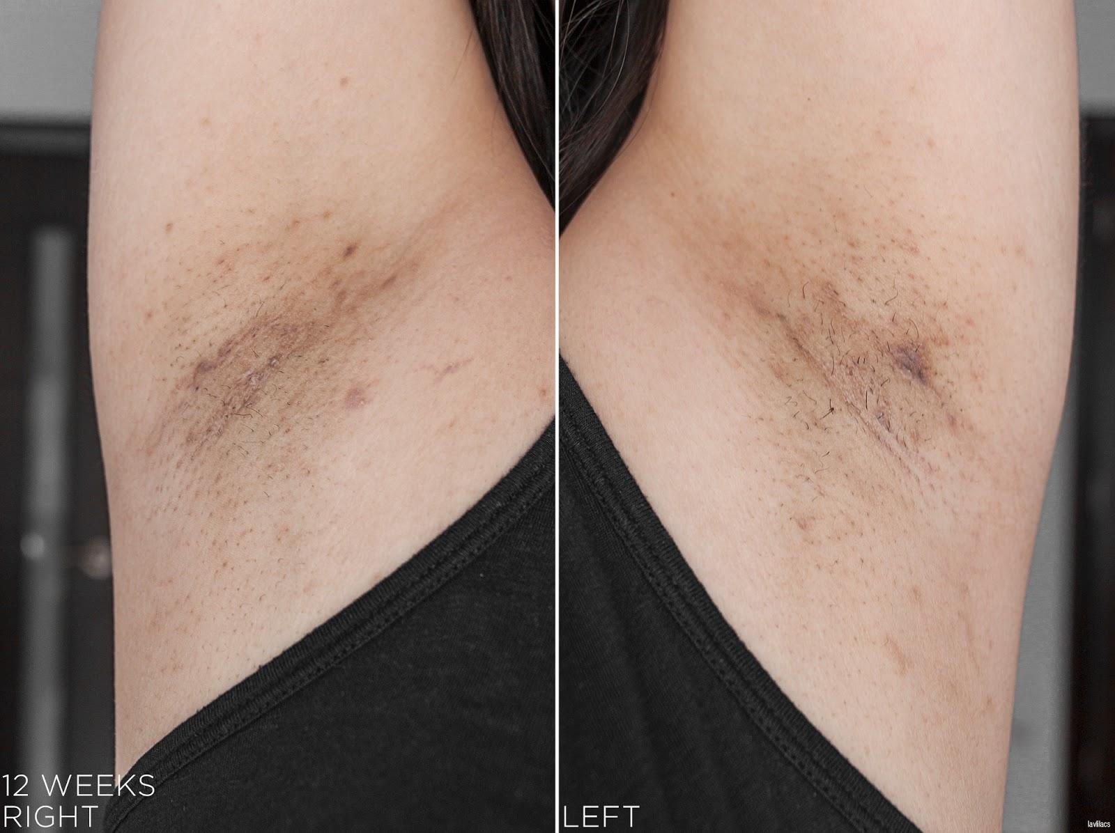 tria Hair Removal Laser Armpits Hair 12 Weeks