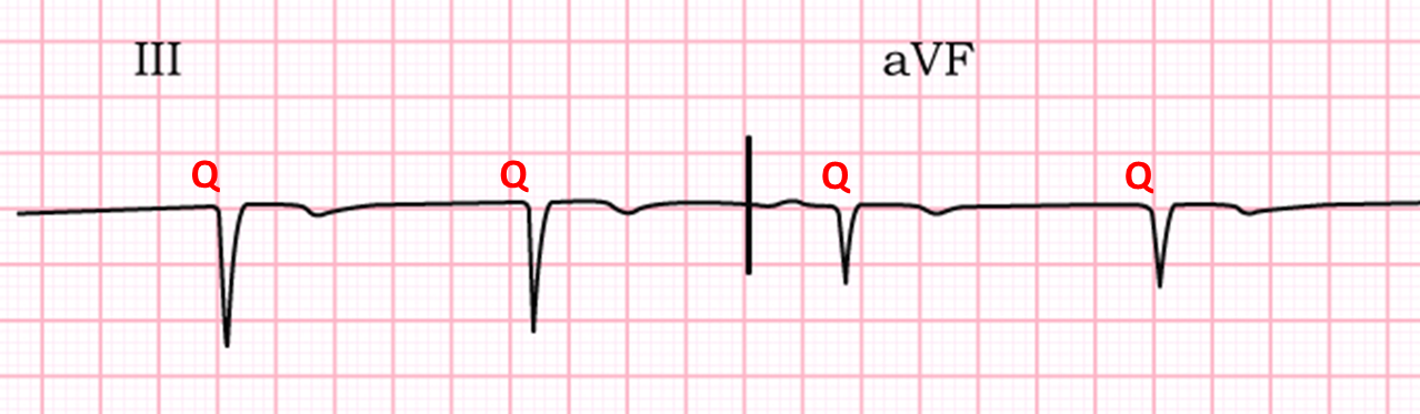 If you have trou...Q Wave