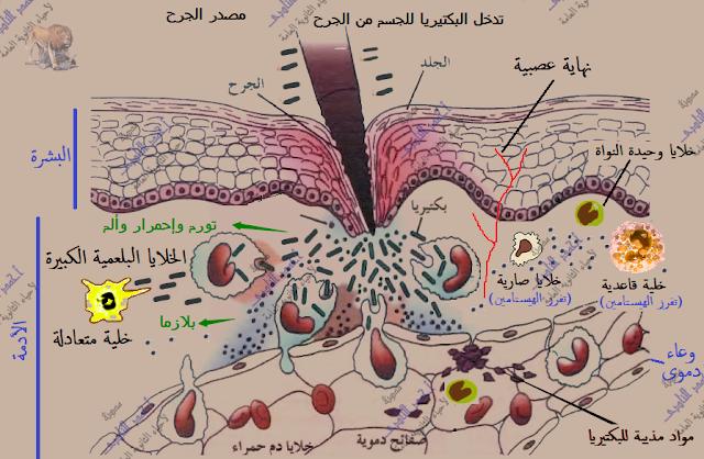 آلية عمل الجهاز المناعى فى  الإنسان - المناعة الطبيعية -خط الدفاع الثانى - الإستجابة بالإلتهاب