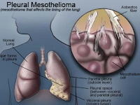 Understanding Asbestosis - Prevention and How to Treat It