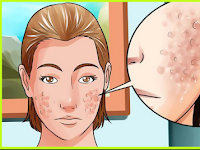 Types of acne acne scars and proper care