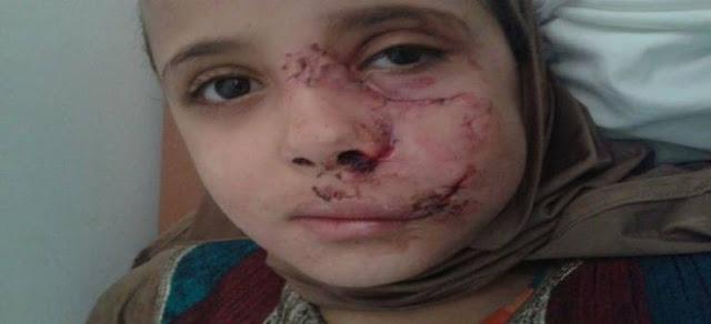 هذه الطفلة ذهبت لصلاة التراويح.. لكن ما حدث معها مؤسف! نهشوا وجهها وجسدها...