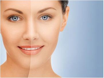 Cara memutihkan wajah alami tanpa Cream Pemutih