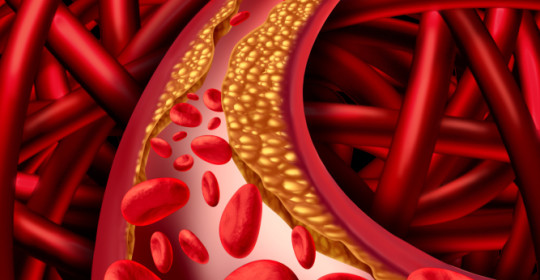 What is Vascular medicine  ?