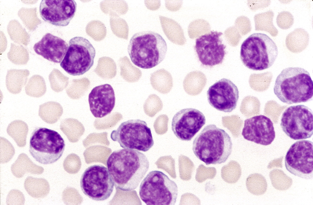 CAR-T cells to treat chronic lymphocytic leukemia after failure of ibrutinib