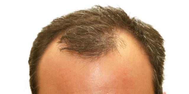 Penumbuh Rambut Botak, Hair tonic Paling Bagus, Mengatasi Rambut Rontok Parah