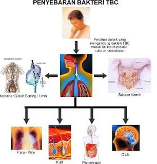 gambar tbc
