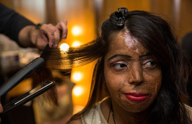 Acid Attack Survivors Fashion Show