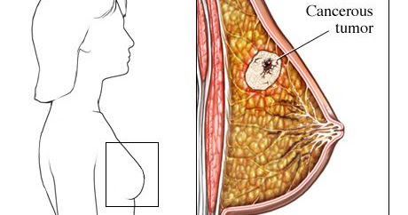 Breast cancer: Symptoms, risk factors, and treatment