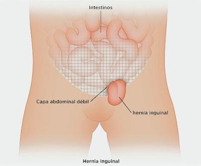 Begini Cara Mengobati Hernia Inguinalis Tanpa Operasi