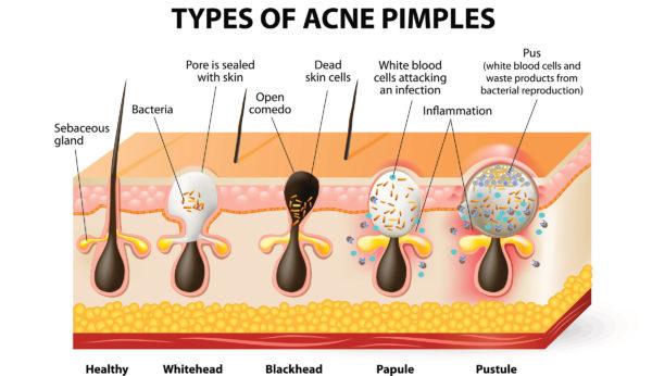 dieta cetogenica e acne