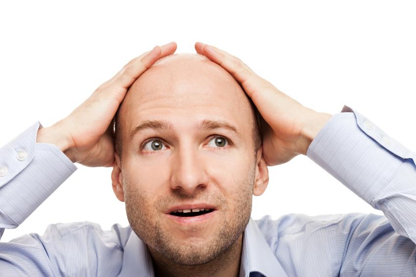 Cara Cepat dan Mudah Menumbuhkan Rambut Botak dan Rambut Tipis