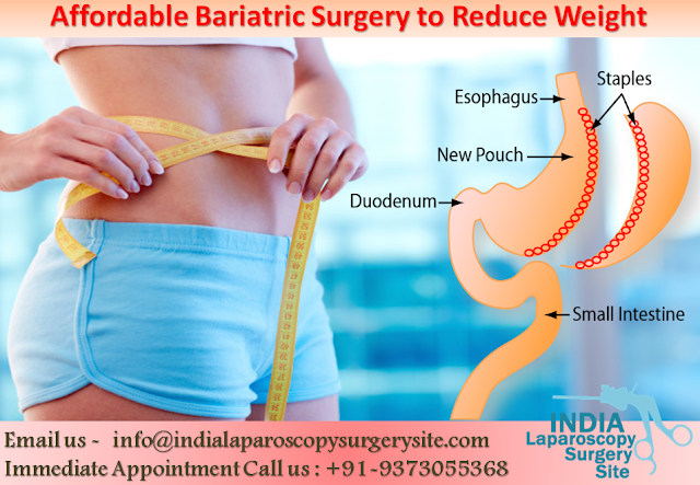 Affordable Bariatric Surgery to Reduce Weight