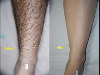 How to remove unwanted hair permanently