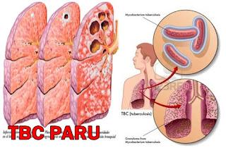 cara alami menyembuhkan tbc