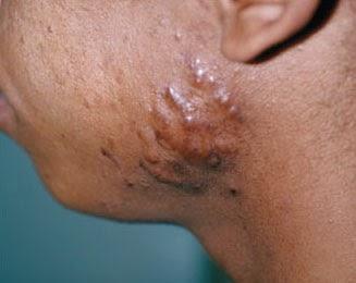 Facial hypopigmented lesions