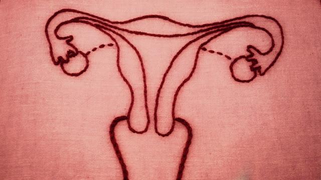 وصفات طبيعية لعلاج نزيف الرحم