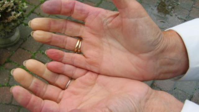 Obat Penyakit Scleroderma Herbal