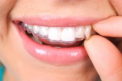 Foto de boca poniéndose un aparato transparente de ortodoncia