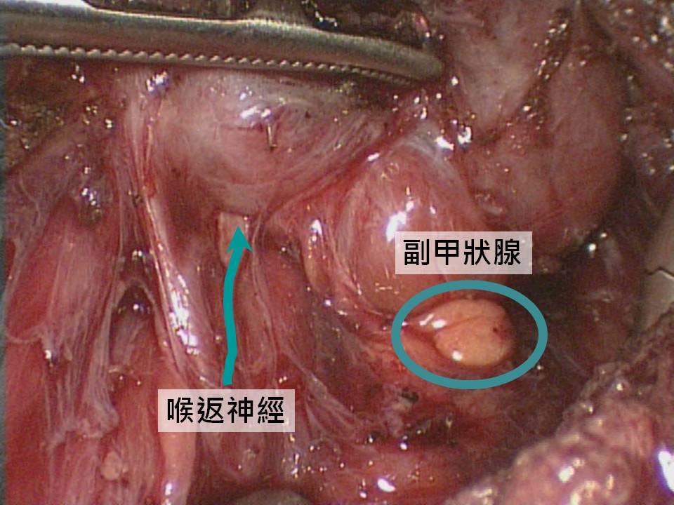 梁宗榮 醫師: 什麼是內視鏡甲狀腺手術?