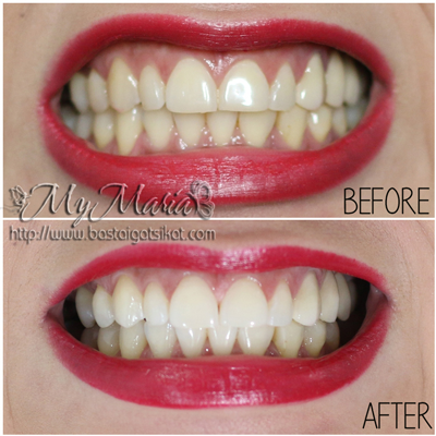 Review Teeth Whitening With Crest 3d White Whitestrips Basta Igat Sikat By Mymaria Home Of Maria Oilbularya