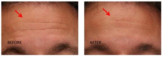 Botox dan Filler di Erha Clinic